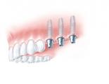 Drei Implantate (z.B. mit Titanaufbauten) für einzelne Kronen