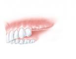 Drei fehlende Seitenzähne