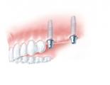 Zwei Implantate (z.B. mit Titanaufbauten) als Brückenpfeiler