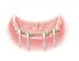 Vier Implantate mit Haltesteg